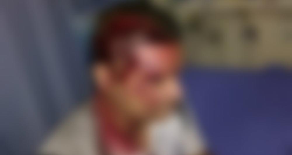 Policial foi agredido ap�s receber paulada na cabe�a