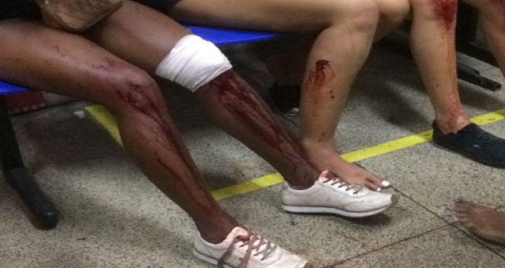 Correria em baile funk por causa de tiros deixa pelo menos 50 feridos na Penha