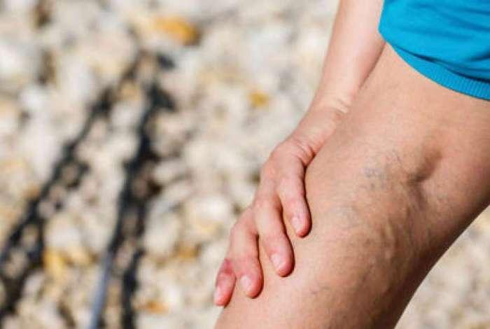 Varizes são veias dilatadas e tortuosas, que causam dor e inchaço