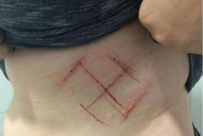 Homens inscrevem suástica em jovem de 19 anos que voltava para casa com camisa 'Ele Não', em Porto Alegre