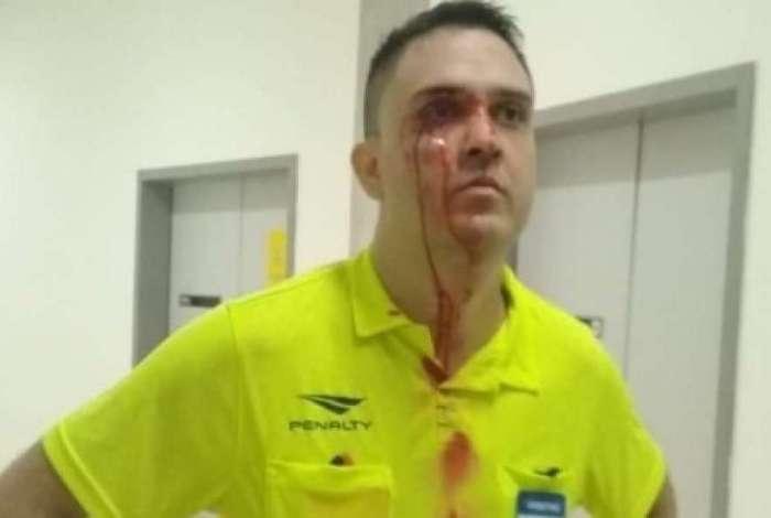 Árbitro sofreu agressões e acabou batendo com a cabeça