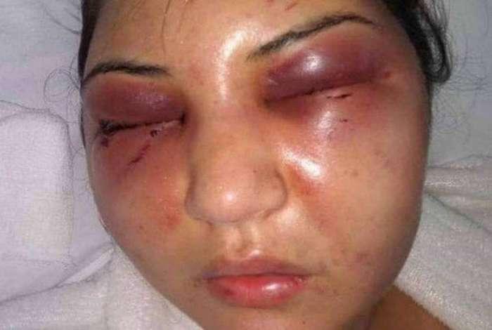 Christini Cardoso de França Felippe foi agredida no último dia 21