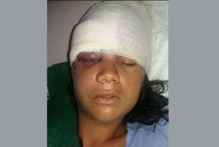 Estefani está internada após ser agredida pelo ex-namorado com golpes de pá de pedreiro