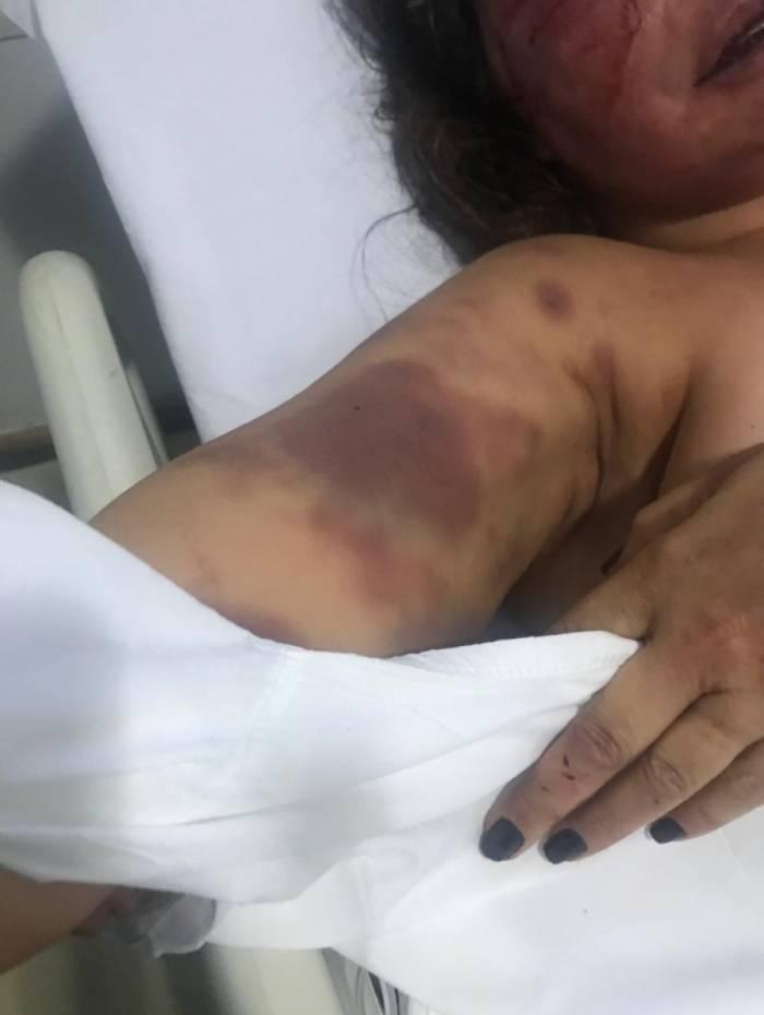 Elaine Coparróz foi encontrada desmaiada em seu apartamento e Vinícius (detalhe) foi preso em flagrante