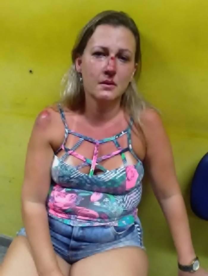 Priscila ficou bastante machucada com as agressões