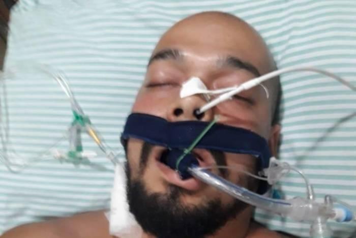 Criminoso chegou à unidade de saúde alegando acidente de trabalho