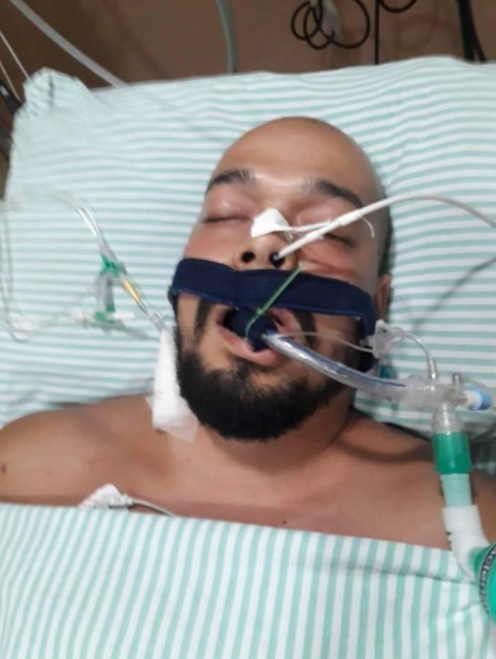 Criminoso chegou a pé à unidade de saúde alegando ferimento por acidente de trabalho