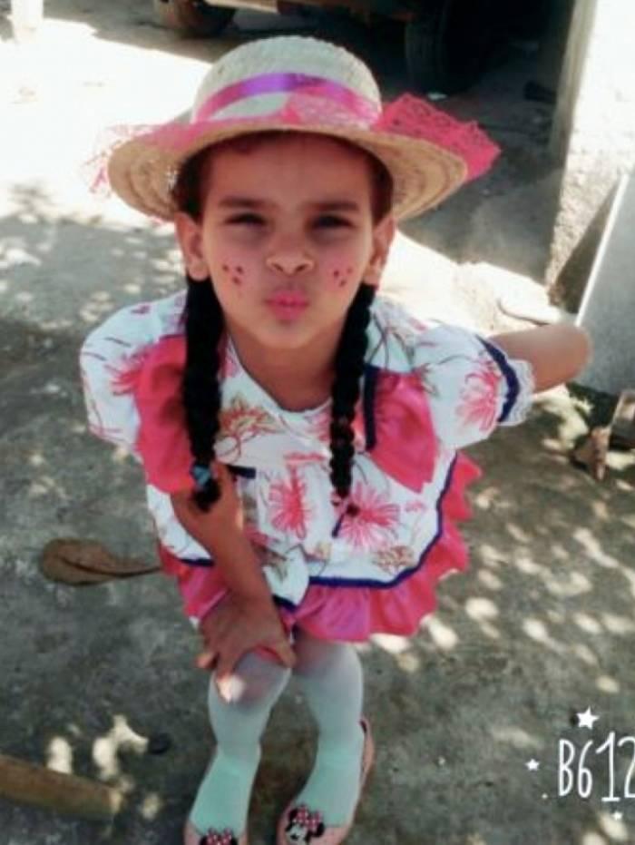 Ana Cristina Pacheco Luciano teve queimaduras em 80% do corpo após cair em poça de combustível vazado de duto da Transpetro