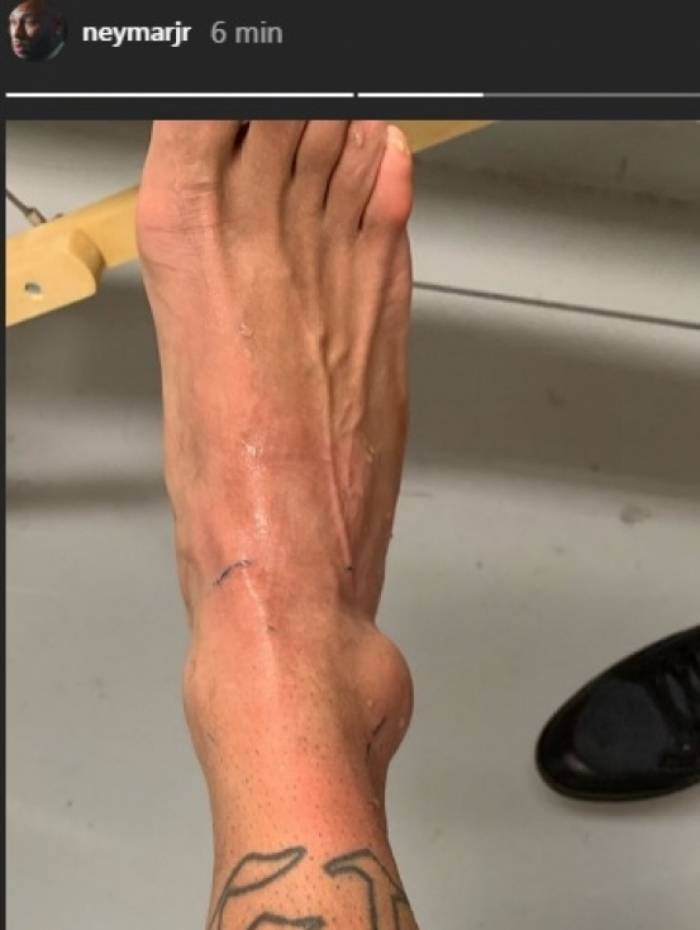 O tornozelo direito, inchado, tirou Neymar da Copa América
