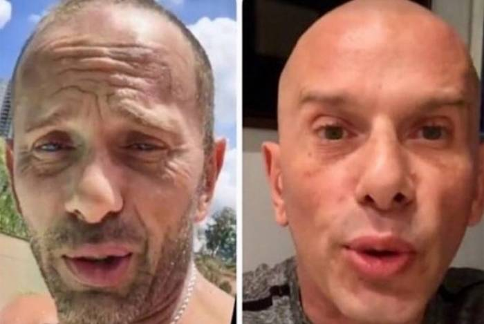 Antes e depois: Rafael Ilha aplica botox e faz harmonização facial