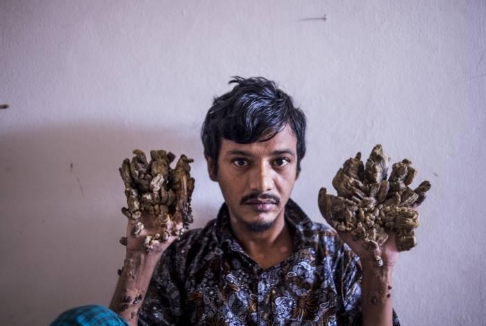 Abul Bajandar, 28 anos, apelidado de 'homem-árvore' por verrugas enormes nas mãos e nos pés quer que mãos sejam amputadas para aliviar dor