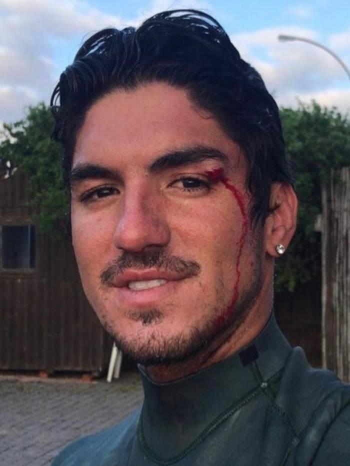 Gabriel Medina se machuca