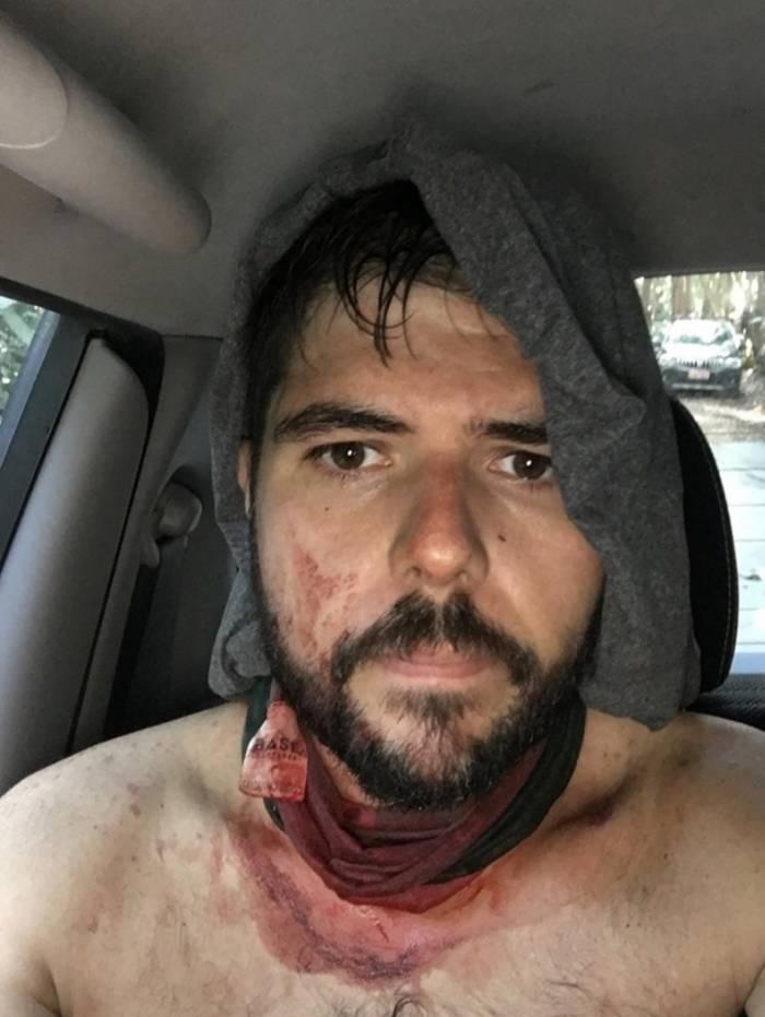 Jovem foi agredido ao tentar fugir de criminosos na manhã deste domingo