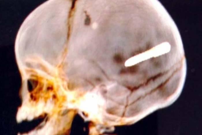 Exame de imagem constatou objeto alojado na cabeça do bebê