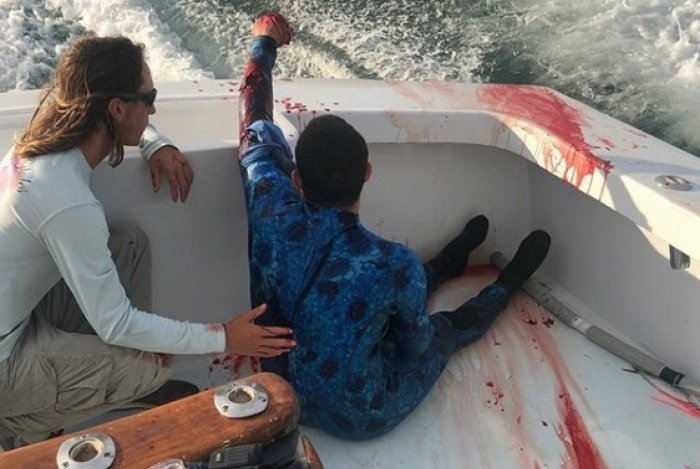 Mergulhador é atacado por tubarão