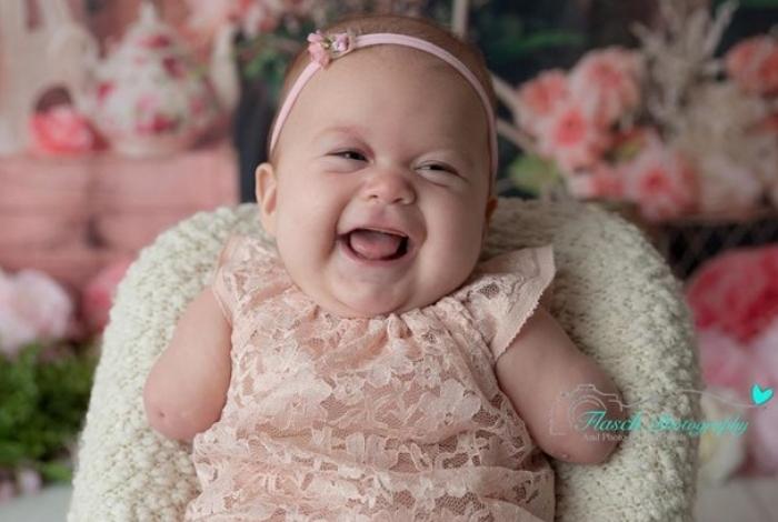 Mãe recusou sugestão de médico de abortar filha sem braços; hoje a pequena tem três meses