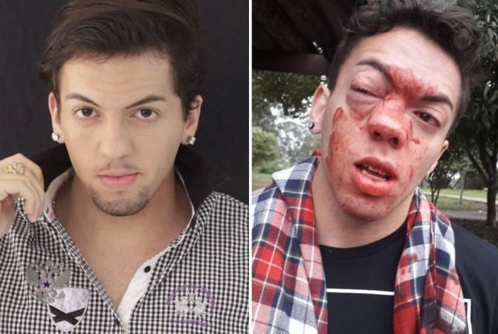 Ator acusa motorista de homofobia em São Paulo