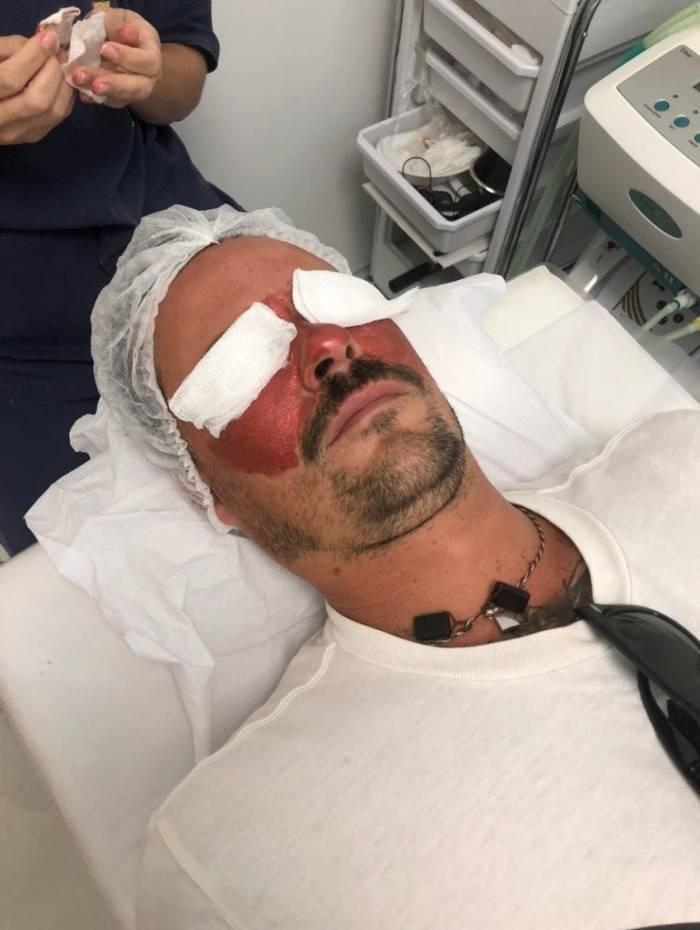 Paulinho Vilhena se submete a procedimentos estéticos