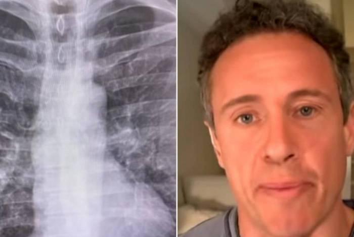 Chris Cuomo mostra raio-x do pulmão para alertar sobre a gravidade do coronavírus