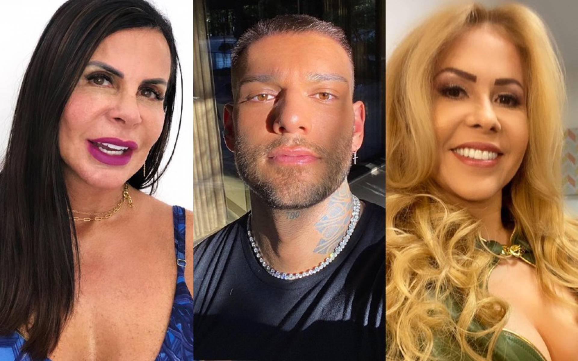 Confira o antes e depois dos famosos que fizeram harmonização facial