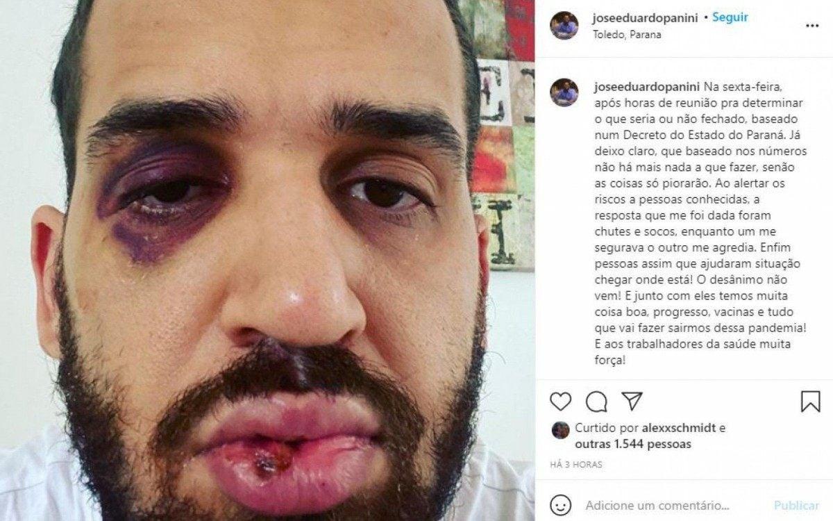 José Eduardo Panini foi espancado após alertar um grupo de 'pessoas conhecidas' sobre os riscos da Covid-19 - Reprodução/Instagram