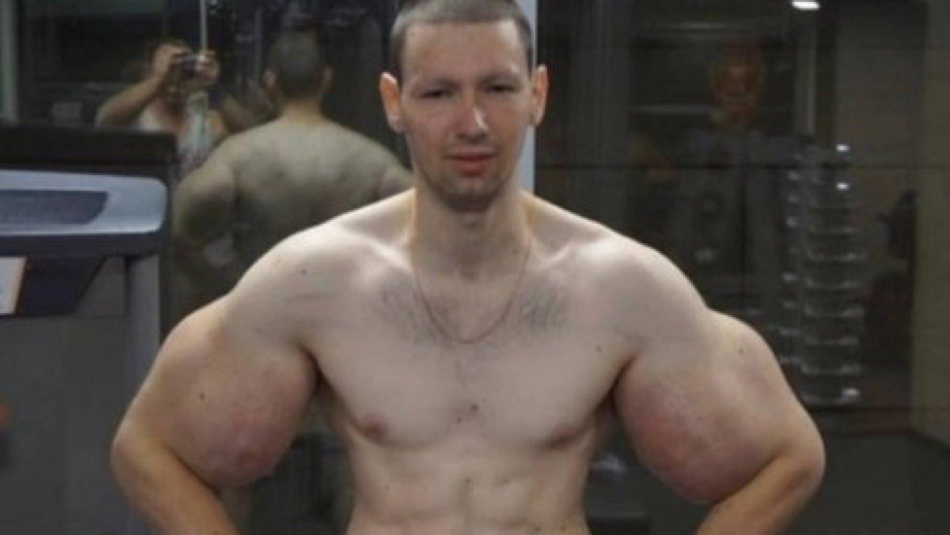 Bizarro! Bíceps de lutador 'explode' durante luta de MMA; veja o vídeo!