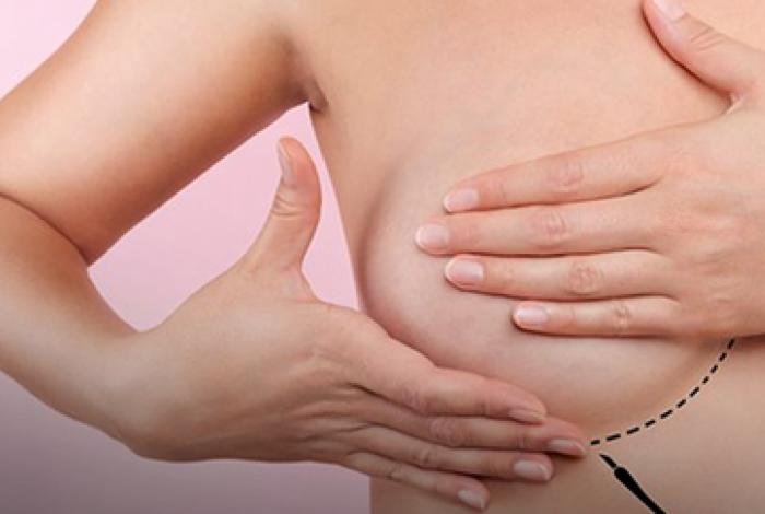 Mastectomizadas devem ter câncer de mama já tratado